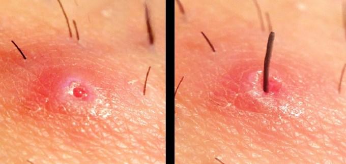 Rezultat slika za urasle dlake